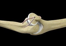 Ulnar Collateral Ligament (UCL) Repair with Internal Brace